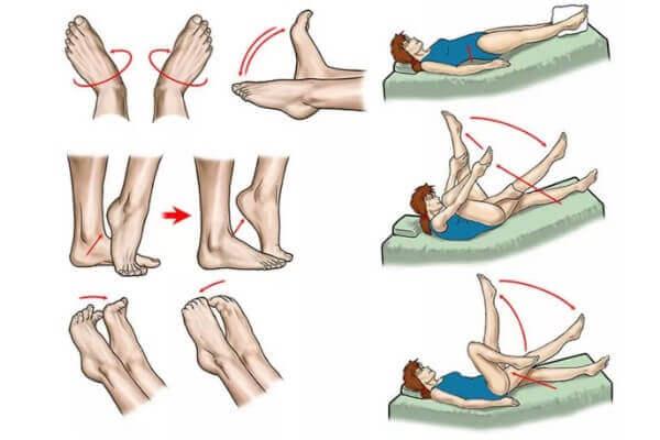 Ćwiczenia na żylaki i niewydolność żylną kończyn dolnych