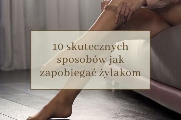 skuteczne sposoby jak zapobiegać żylakom nóg