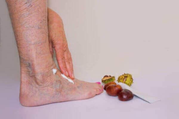 Kasztanowiec - właściwości wyciągu i maści z kasztanowca na żylaki
