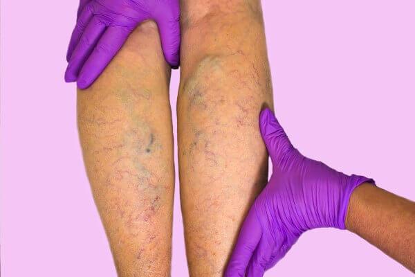 Przewlekła niewydolność żylna kończyn dolnych - objawy i leczenie