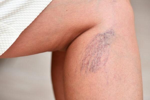 Pajączki na nogach i pękające naczynka na udach - jak pozbyć się problemu?