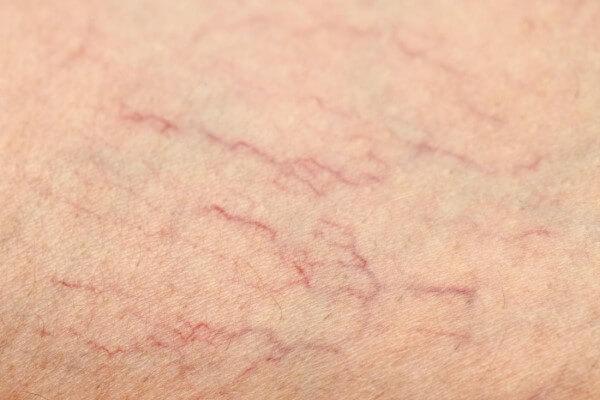 Teleangiektazje na nogach i twarzy - co to jest i jak im przeciwdziałać?