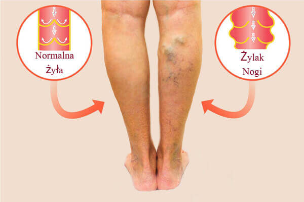 Żylaki nóg - przyczyny, objawy i metody leczenia żylaków kończyn dolnych